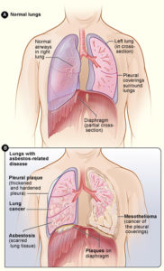 Asbestos effect on lungs