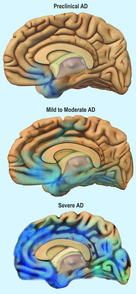 stages of alzheimer's disaese