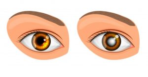 Normal eye and Glaucoma eye